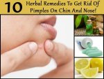 Herbal Remedies Get Rid Pimples On The Chin Nose