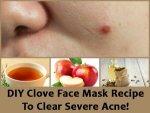 Diy Clove Face Mask Recipe Clear Severe Acne