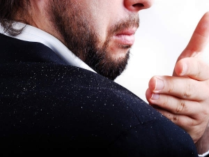 How Remove Dandruff Fast Tips Get Rid Dandruff
