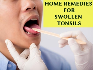 Fast Home Remedies Tonsillitis