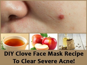 Diy Clove Face Mask Recipe Clear Severe Acne