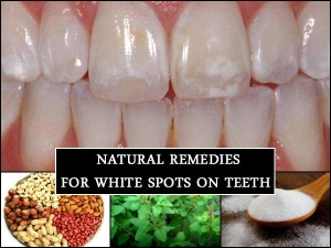 Do You Have White Spots On Your Teeth These Natural Remedie