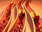 Reduce Bad Cholesterol High Blood Pressure With This Amazing
