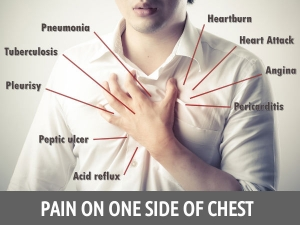 Reasons Pain On One Side Chest