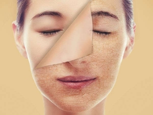 Natural Remedies Patchy Skin