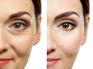 Natural Anti Wrinkle Treatments Prepare At Home