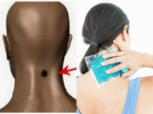 Benefits Ice Therapy Feng Fu Chinese Method For Acute Neck P