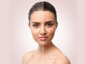 Natural Home Remedies To Treat Acne Scars