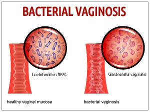 Can Unprotected Intercourse Cause Bacterial Vaginosis