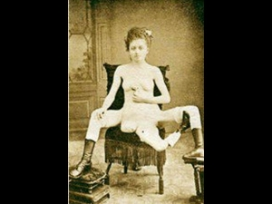 She Was French Prostitute Born With 3 Legs 4 Breasts 2 Va