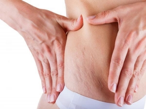 Easy Ways Get Rid Stretch Marks