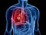 Lung Cancer Ups Suicide Risk Men Study