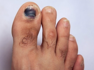 Dangerous Reasons Why Your Toe Nails Are Getting Darker