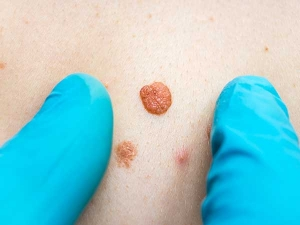 Painless Home Remedies For Skin Tags On Face And Body