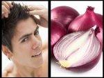 How Use Onion Its Juice Dandruff Telugu
