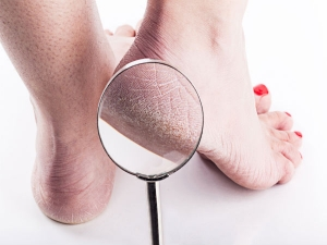 Natural Remedies Cracked Heels