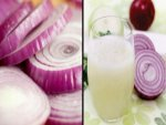 Onion Juice Hair Mask Prevent Baldness Helps Hair Regrowth