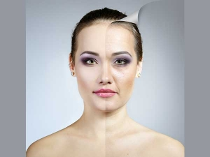 Ten Simple Home Remedies To Remove Age Spots