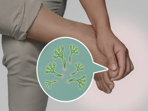 Home Remedies Treat Fungal Infections During Monsoon