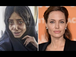 Woman Who Underwent Surgeries To Look Like Angelina Jolie