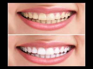 Everyday Mistakes That Are Yellowing Your Teeth