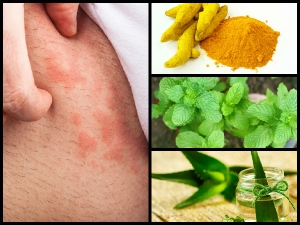 Effective Home Remedies For Hives