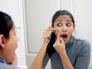 Home Remedies To Treat Pimples And Acne Easily