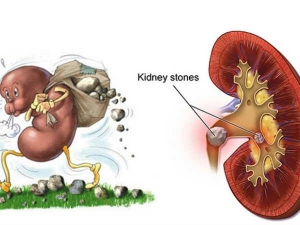 Kidney Stones Diet Amazing Foods To Prevent Kidney Stones