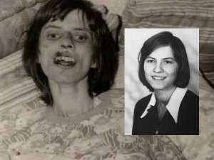 Anneliese Michel Aka Emily Rose Who Lost Her Life To Catholic Exorcism