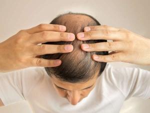 Eight Natural Ways Treat Frontal Hair Loss
