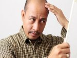 These Remedies Will Help You Regrow Hair On Your Bald Forehe