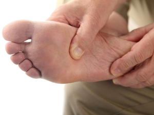 Home Remedies For Diabetic Foot Ulcers