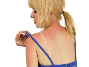 Include These 9 Foods Your Diet Protect Yourself From Sunburn