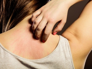 Deadly Diseases Your Itchy Skin Is Trying To Warn You About