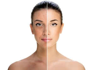 Does Castor Oil Help In Reducing Pigmentation