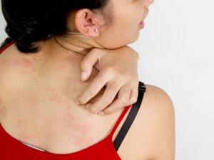 Homemade Blends To Get Rid Of Shoulder Acne
