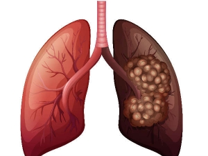 Eight Surprising Signs Lung Cancer Everyone Should Know