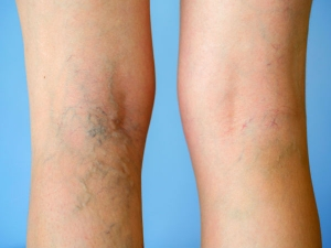 Seven Silent Signs Of Deep Vein Thrombosis