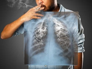 World Lung Cancer Day Lung Cancer No More Smoker Disease