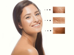 Large Pores On Skin Causes And Home Remedies