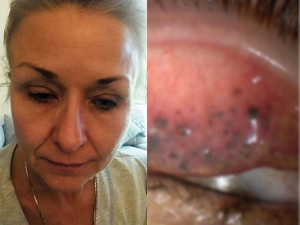 This Woman Slept With Mascara For 25 Long Years And Almost Became Blind