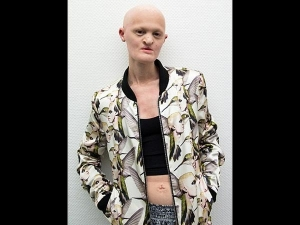 Melanie Gaydos Is A Famous Model Who Suffers From A Rare Genetic Disorder