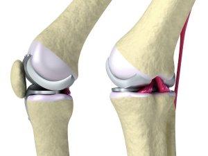 What Happens In Your Body When A Bone Breaks