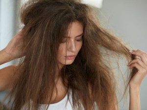 Try These 10 Tips Keep Dry Hair Problems At Bay