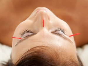 Does Acupuncture Really Help In Weight Loss