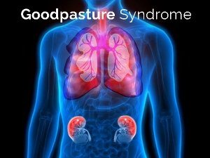 Goodpasture Syndrome Gps Causes Symptoms Diagnosis And Treatment