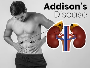 Addison S Disease Symptoms Causes Risk Factors And Treatment
