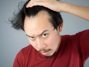 Home Remedies That Will Cure Hair Fall And Help Get Rid Of Bald Pathces