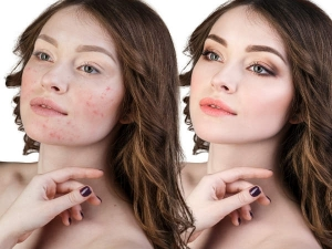 Effective Remedies To Remove Pimples In One Day At Home