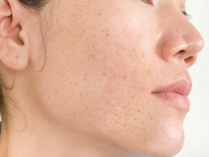 Hyper Pigmentation Types Causes Symptoms And Treatment